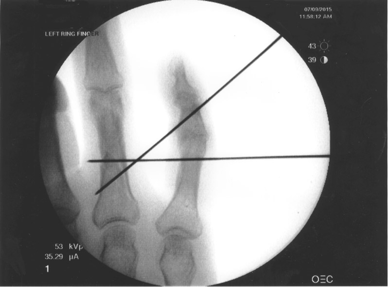 X-ray During Surgery a week later